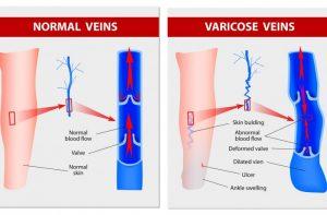 About varicose veins