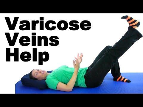 Varicose veins help